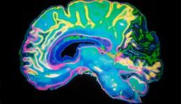 Attack of the brain