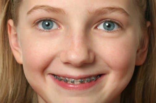 Bracing kids for braces