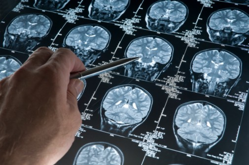 Alzheimer's patients can now get treatment earlier