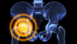 What your hip pain may be telling you