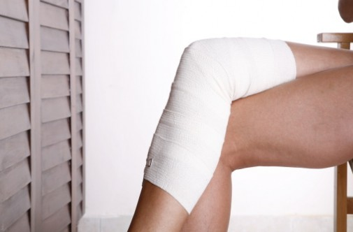Living with varicose veins