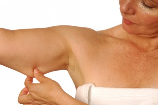 Arm lifts: The new trendy nip, tuck