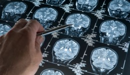 Using ultrasound to map brain function?
