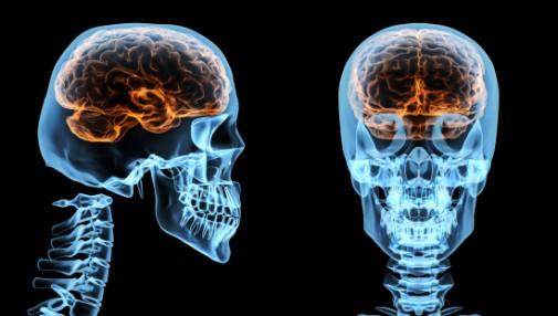 Anatomy of a brain injury