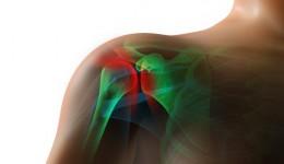 The 411 on rotator cuff surgery