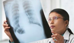 New lung transplant program comes to Chicago