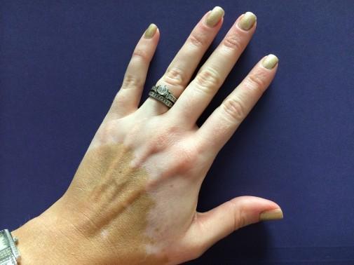 Living with vitiligo