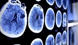 Can changes in behavior predict Alzheimer's?