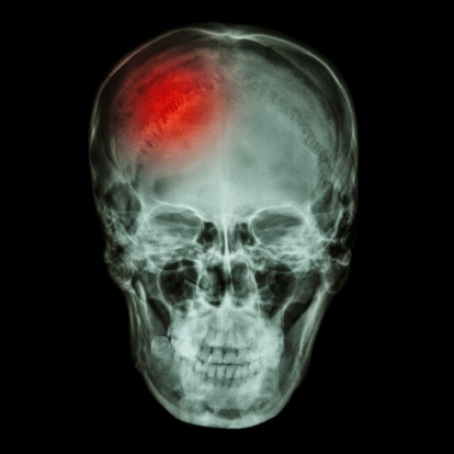 Concussions may cause stroke in the future