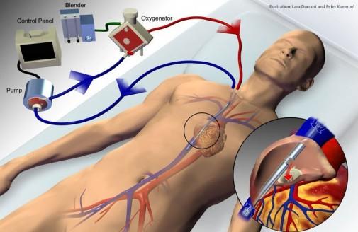 Rare heart procedure saves man's life