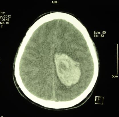 Polio: A treatment for brain cancer?