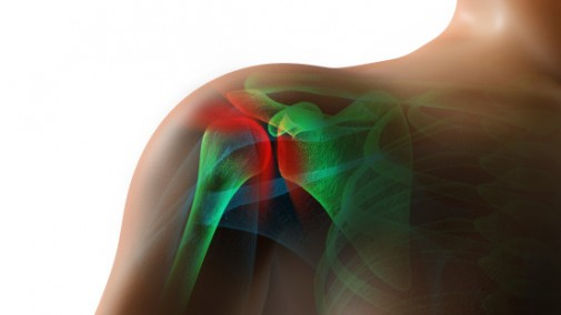 Rotator cuff injury can be debilitating
