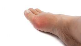What you need to know about gout