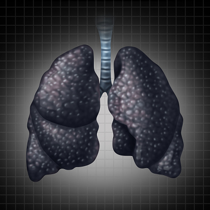 Infographic: Lung cancer in African American men