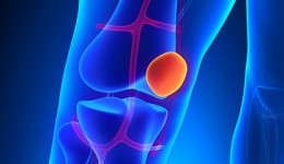 How weight loss protects your knees