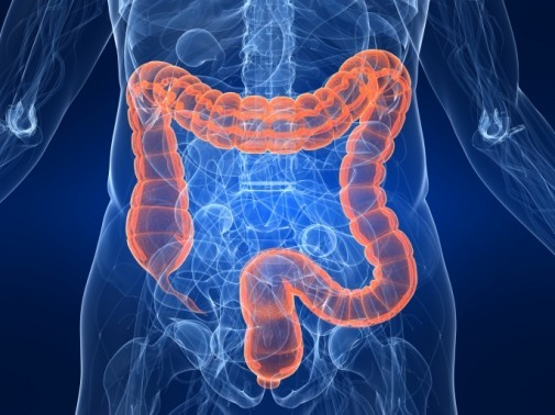 Obesity linked to colon cancer