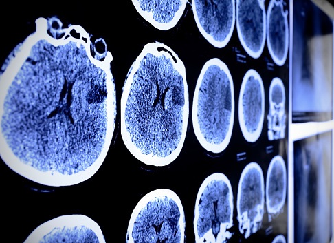 The surprising truth about stroke among young adults