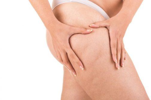 Model Ashley Graham flaunts cellulite
