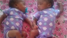 When twins share more than just DNA