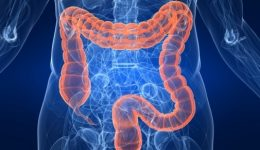 Uncommon questions you should ask before getting a colonoscopy