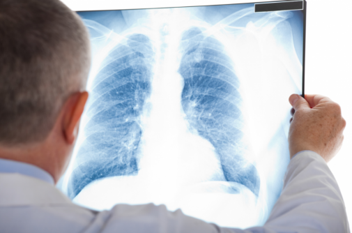 Does eating these two foods repair your lungs?