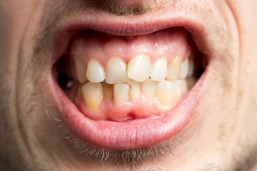 Crooked teeth? They could hurt more than just your self-esteem