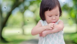5 simple remedies to treat mosquito bites