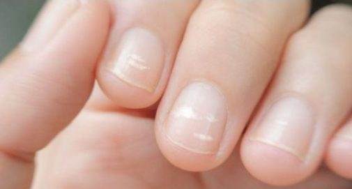 Could your fingernails indicate something more?