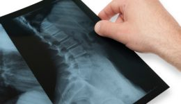 Things to know about a scoliosis diagnosis