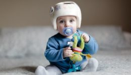 Does your baby need a helmet?