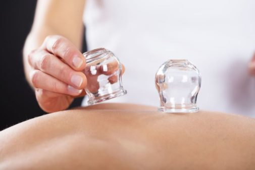 Some cupping therapy questions answered